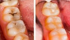 Tooth and composite dental filling is great treatment to prevent cavities. At Woodshore Family Dentistry, dentist offer permanent & temporary tooth filling dentist procedures at lowest prices. Teeth Health, Dental Health, Reverse Cavities, Natural Facial Cleanser, Face Cleanser, Sedation Dentistry, Dental Fillings, Heal Cavities, Cosmetic Dentistry