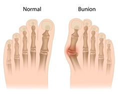 Learn what can be done to treat a bothersome bunion. Also, see some before and after bunion surgery pictures!