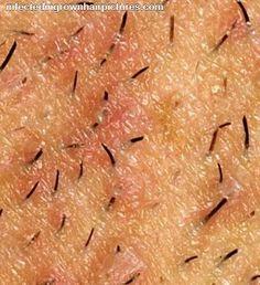 Removing An Ingrown Hair