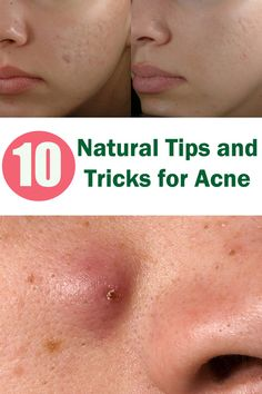 10 natural tips and tricks for acne