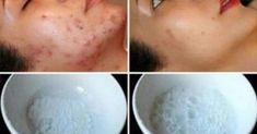 Creams to Remove Face Stains - Creams to Remove Face Stains - Remove Stains, Acne Scars And Wrinkles From Your Face With This Incredible Natural Mask! - Homemade creams to remove face stains - Homemade creams to remove face stains Remove Acne, Remove Stains, Acne Scar Removal, Skin Mask, Les Rides, How To Get Rid Of Acne, How To Remove, Prevent Wrinkles, Acne Remedies