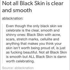 Celebrate black skin. Period.