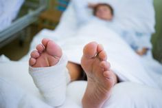 Discover what you can expect on the road to recovery after going through bunion surgery from San Antonio, TX podiatrist, Dr. Darren Silvester. Bunion Surgery, Leg Cast, San Antonio, Recovery, Survival Tips, Healing