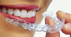 Disrupt your Business or Someone Else Will - Align Technologies is 3D printing 180,00 aligners a day! | Make it LEO