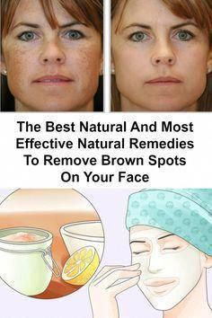 How to Eliminate Dark Spots From Facial area Within 2 Times #BestCreamForBrownSpots Spots On Legs, Brown Spots On Skin, Skin Spots, Brown Skin, Dark Brown, Dark Patches On Skin, Sunspots On Face, Anti Aging, Natural Remedies