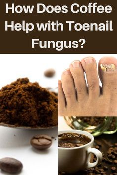 Did you know that you can use coffee to make a nail fungus home remedy? Create a foot paste by mixing ten teaspoons of coffee and 150 ml water. To treat the toenail fungus infection, soak the infected nails in the foot paste for 10 minutes. For full instructions click to read out post.