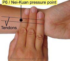 Aliviar náuseas com ponto de acupressão PC6. Uma vez que você encontrou os pontos PC6, aplique pressão para baixo firme com o polegar ou dedo por cerca de 30 segundos de cada vez. Em nenhum momento deve sentir essa pressão dolorosa! Tocar no ponto PC6 também pode ser muito eficaz, utilizando uma caneta ou objeto similar.