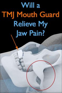 Find out how a TMJ mouth guard can help treat jaw pain, along with some easy to learn at-home approaches for managing stress and other issues that lead to the disorder. Jaw Clenching Remedies, Jaw Massage, Jaw Exercises, Jaw Pain, Cupping Therapy, Mouth Guard, Trigger Points, Teeth Grinding, Diverticulitis