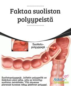 Faktaa suoliston polyypeistä   Polyypit ovat #suhteellisen yleisiä pieniä #nystyröitä, jotka #kasvavat suoliston seinämissä.  #Terveellisetelämäntavat