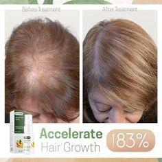 Hairdo For Long Hair, Grow Long Hair, Hair Growth Solution, Hair Growing Tips, Hair Up Styles, Voluminous Hair, Hair Serum, Hair Growth Oil, Hair Regrowth