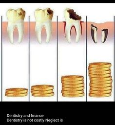 Dentistry is not expensive, neglect is. Dental World, Dental Life, Dental Art, Dental Teeth, Dental Implants, Dental Hygiene School, Dental Assistant, Lente Dental, Dental Images