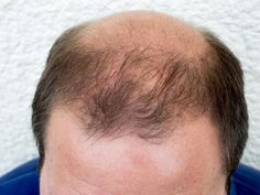 I was balding, I had the typical horseshoe loser pattern. I reversed my male pattern baldness naturally with diet, herbs and natural shampoos. How to cure male pattern baldness and regrow your hair fast. Vellus Hair, Grow Hair, New Hair Do, Your Hair, Comb Over Styles, Androgen Receptor, Natural Lubricant, Androgenetic Alopecia, Male Pattern Baldness