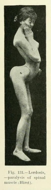 biomedicalephemera:  Hyperlordosis, or excessive inward curvature of the lumbar vertebrae. The cervical and lumbar vertebrae are normally lordotic, but excessive inward curvature can be caused by pregnancy, weak hamstrings, excessive visceral fat (disproportionately distributed), tight hip flexors (psoas), or weak spinal muscles. The paralysis of the spinal muscle here was a cause, not a cause of, the hyperlordosis. From Anomalies and Curiosities of Medicine, by Walter L. Pyle and George M…