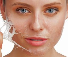 Home Solutions for Peeling Skin is easy to use. you can care your skin any time when you want using these simple steps for Peeling skin care. Acne Rosacea, Pimples, Chemisches Peeling, Chemical Skin Peel, Haut Routine, Pele Natural, Dry Skin On Face, Oily Skin, Skin Whitening