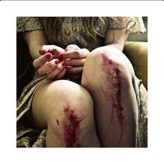 bloody knees