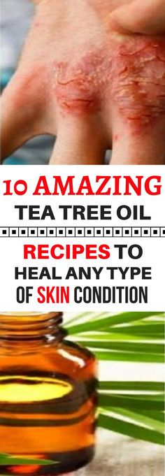 10 AMAZING TEA TREE OIL RECIPES TO HEAL ANY TYPE OF SKIN CONDITION (SCARS, WARTS AND MORE!)