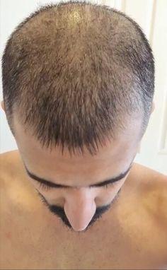 Does Minoxidil Work - Hamza, before starting on Minoxidil Anti Hair Loss, Stop Hair Loss, Androgenetic Alopecia, New Hair Growth, Luscious Hair, Hair Falling Out, Hair Locks, Hair Regrowth, Shopping