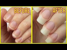 Struggle With Short Nails? These 6 Tips Will Help You Grow Them Long And Strong. FAST!