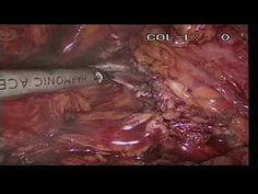 Diagnosi e terapia dei diverticoli vescicali. Vorresti saperne di più? Leggi l'articolo e guarda il video del Prof. Francesco Greco Video, Beef, Food, Therapy, Meat, Hoods, Meals, Ox, Ground Beef