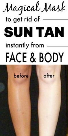 Magical Mask To Remove Sun Tan Instantly From Face & Body Skin Tips, Skin Care Tips, Beauty Care, Beauty Skin, Sun Tan Removal, Beauty Hacks Skincare, Beauty Products, Tan Body, Skin Treatments