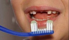 Top Oral Health Advice To Keep Your Teeth Healthy. The smile on your face is what people first notice about you, so caring for your teeth is very important. Unluckily, picking the best dental care tips migh Funny Images, Funny Pictures, Random Pictures, Redneck Party, Redneck Humor, Redneck Games, Dental Humor, Dental Hygienist, Dental Care