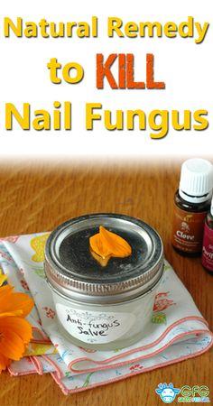 Natural Remedy to Kill Nail Fungus | http://www.grassfedgirl.com/natural-remedy-kill-nail-fungus/