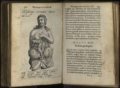 Николас Тульп, Nicolai Tulpii observationum Традиционной Медицины , Амстердам, 1652.водянка на рога матки