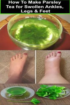 How to make parsley tea for painful swollen feet and legs