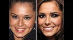 horror post of Shocking Celebrity Before and After Pictures Braces