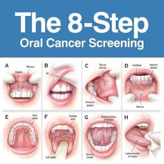 Oral cancer is most often (but not always) found in those who use any form of tobacco and the risk is increases when combined with alcohol use. #DentistGrantsville