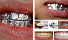 mixing baking soda, salt, and water to make a paste. You then apply this paste to your teeth and apply a layer of tin foil. Leave this for one hour, remove the foil, then brush normally. Repeat twice a week and watch as you get whiter teeth! Teeth Whitening Methods, Natural Teeth Whitening, Whitening Kit, Beauty Care, Diy Beauty, Beauty Hacks, Beauty And More, Health And Beauty, Teeth Care