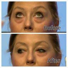 Within 2 minutes, Instantly Ageless reduces the appearance of under-eye bags, fine lines, wrinkles and pores, and lasts 6 to 9 hours. Top Skin Care Products, Pure Products, Beauty Products, Beauty Secrets, Under Eye Wrinkle Cream, Latina, Under Eye Wrinkles, How To Remove, How To Apply