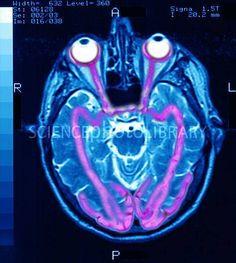 Recorrido que hace la visión, desde los ojos hasta el cerebro. Se llaman Vías Visuales. Por eso decimos que realmente vemos con el cerebro.