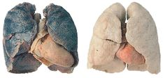 smokers lungs with enlarged heart vs healthy lungs & heart