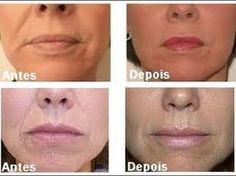 Vou te ensinar como fazer um botox caseiro para o rosto, que vai te ajudar a reduzir pequenas linhas de expressão e melhorar muito a beleza do seu rosto. Receita do Botox Caseiro para o