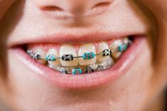 I have no clue what color braces I should get. Do you have any ideas?