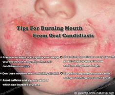 #Tips for burning mouth from oral #candidiasis http://the-smile-makeover.com/smile_makeover.php