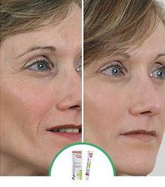Skineance : cosmétique anti-âge et programmes minceur - Skineance