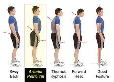 اصلاح ناهنجاری های اسکلتی با تمرینات تخصصی رشد یار  #fitness #fitgirl #fitnessmotivation #fitbit #healthylife#train #body #trainers #حرکات_اصلاحی #افزایش_قد #باشگاه #تمرین #تغذیه #بدنسازی_بانوان #ایروبیک#فیتنس