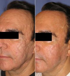 """ACNE SCARS: According to a review of 26 studies, treating acne scars with ablative lasers (like Pearl Fractional) are more effective than treating them with non-ablative lasers. 83% improvement vs 50%.   """"Ablative lasers, especially fractional lasers, such as the Pearl Fractional Laser, are far more effective than non-ablative lasers when treating acne scars,"""" Dr. Alina Sholar said when asked about the study findings."""