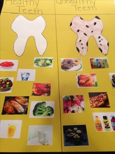 Healthy Teeth versus Unhealthy Teeth… I made this poster board for preschool c… - Mundhygiene Body Preschool, Preschool Science, Preschool Lessons, Preschool Activities, Dental Health Month, Health Unit, Nutrition Activities, Healthy Teeth, Healthy Food