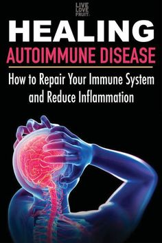 Hypothyroidism Diet - Healing Autoimmune Disease: How To Repair Your Immune System and Reduce Inflammation - The Healthy Thyrotropin levels and risk of fatal coronary heart disease: the HUNT study. Natural Cure For Arthritis, Natural Cures, Natural Healing, Natural Treatments, Arthritis Remedies, Health Remedies, Arthritis Hands, Rheumatoid Arthritis Diet, Natural Remedies