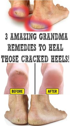 Heal Cracked Heels With This Amazing Remedy! - News Health And Beauty Updates Foot Remedies, Dry Skin Remedies, Natural Health Remedies, Feet Treatment, Living A Healthy Life, Healthy Tips, Fat Burning, Health And Beauty, Hair Care