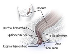 How to manage hemorrhoids