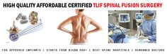 TLIF Spinal Fusion Surgery
