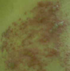 Valacyclovir Dosage For Herpes Zoster