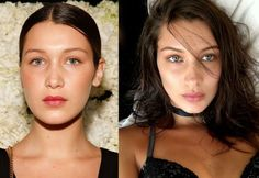 Bella Hadid Nose, Facial Cosmetic Surgery, Cheek Fillers, Dermal Fillers, Celebrity Plastic Surgery, Celebrities Before And After, Botox Injections, Operation, Laser Hair Removal