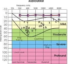 How to Read an Audiogram. Repinned by SOS Inc. Resources @sostherapy.