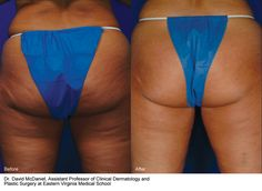 ALL in one treatment- lift the bottom, remove cellulite/ smooth skin and loose inches off your thighs and bottom..