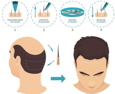 Zayn Skin Clinic offers hair transplant in Pune at affordable cost with 100% proven good. We offer both FUT and FUE hair transplant techniques. Check Review Hair clinic in Pune